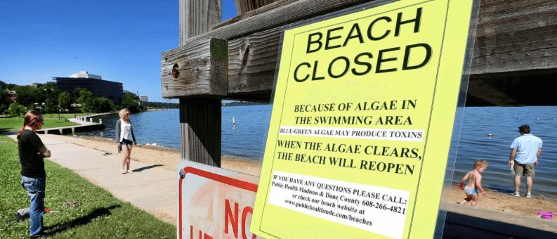 Beaches Closed - John Hart, Wisconsin State Journal