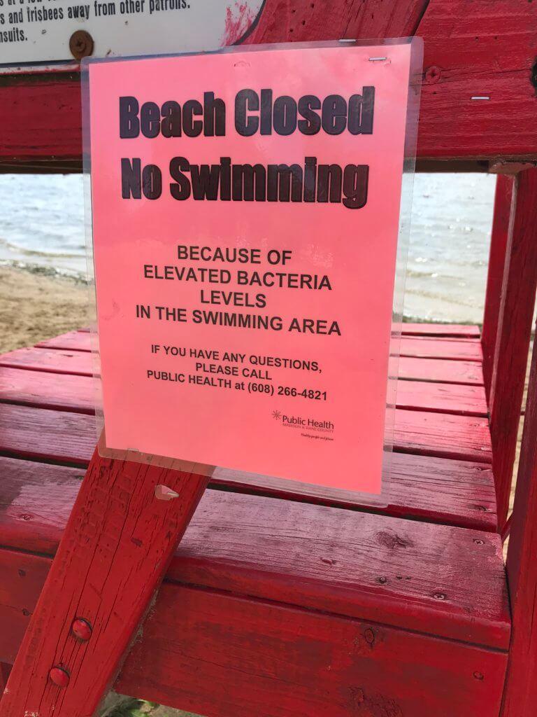 BeachClosed_Bacteria